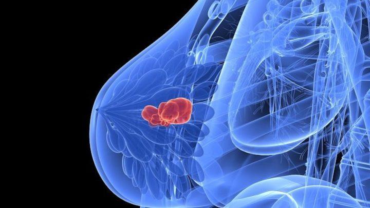 Aborto e câncer de mama: décadas de estudos sendo ignorados